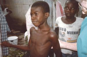 Malnutrition in children